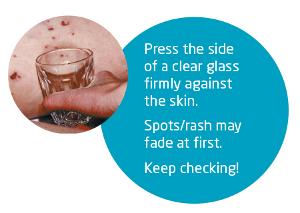 Meningitis glass test