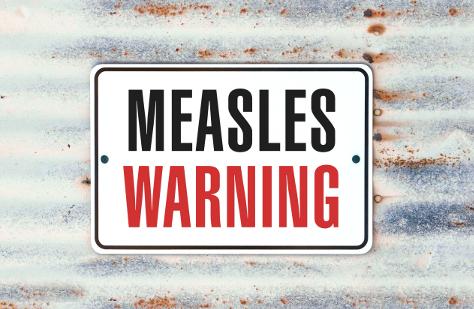 Measles 474